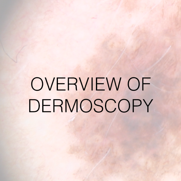 Overview of Dermoscopy
